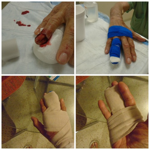 finger-march-17-2016-collage.jpg
